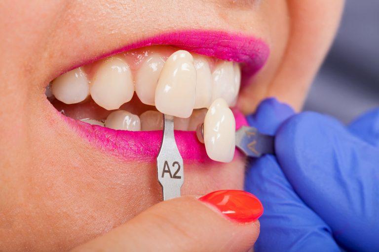Dental Shade Determination