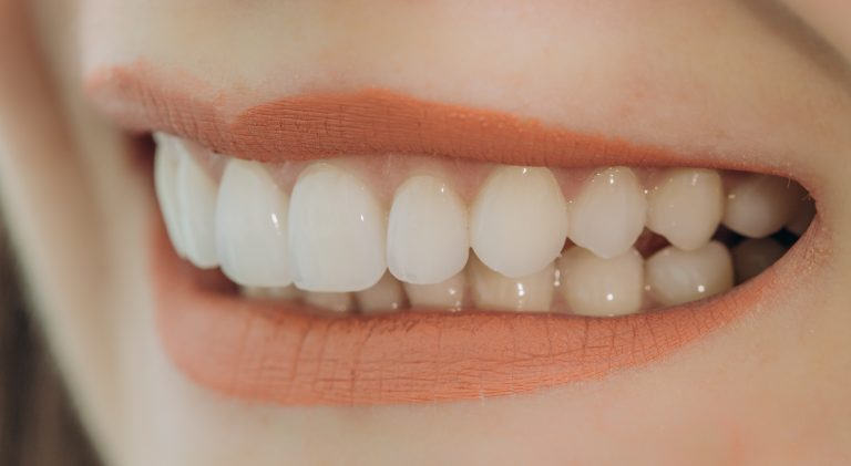 Hollywood Smile With Porcelain Crowns And Veneers